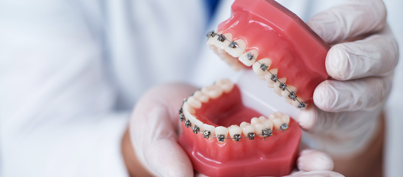 Dentist holding teeth model with braces