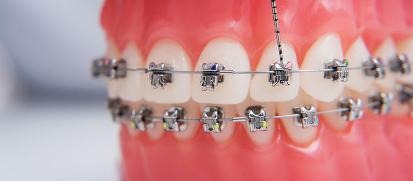 Orthodontics menu image