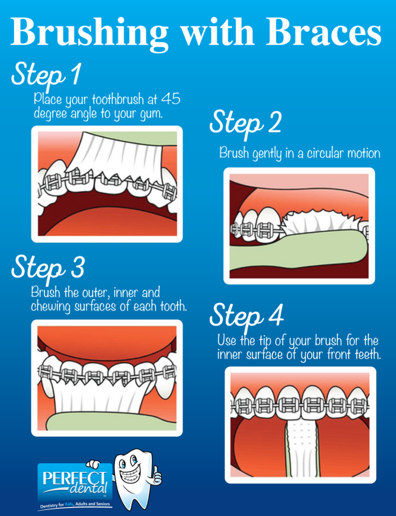 Brushing with Braces: Tips